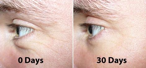 Воздействие коллагена с ботоксом на морщины под глазами